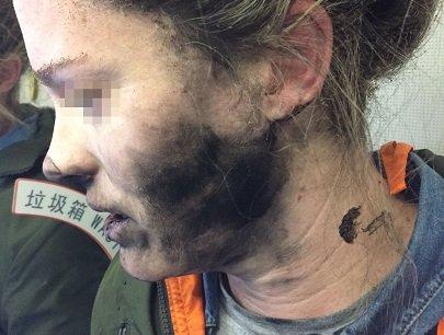 Беспроводные наушники взорвались прямо вухе девушки: ужасные  фото